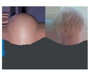 hair regeneration process